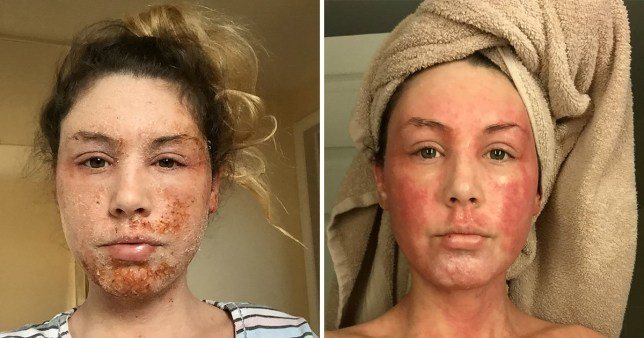 Woman with eczema left with 'lizard skin' after not using