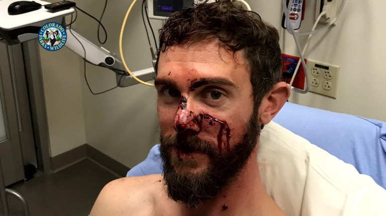 Runner who fought off a mountain lion. A runner who survived an attack by a mountain lion says he wrestled the young animal to the ground and jammed his foot onto its neck to suffocate it. Travis Kauffman says the lion locked its jaws on his wrist and was clawing his face and arms during the attack in Colorado on February 4.