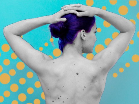 Experts recommend ignoring advice for psoriasis on YouTube