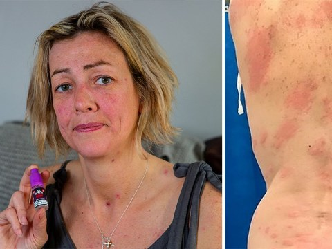 Mum's body 'covered in allergic burns' after vaping for the first time