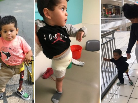 Toddler's prosthetic leg was stolen, so community came together to buy him a wheelchair