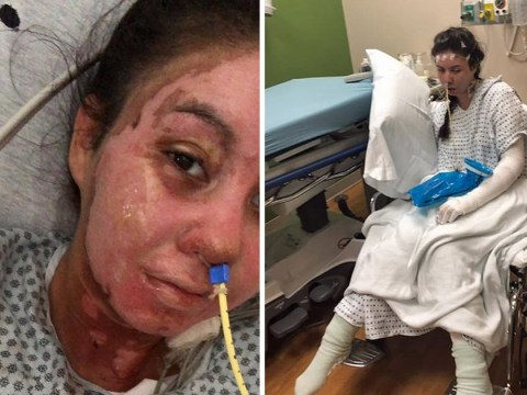 Burns survivor who looked like 'Frankenstein's mermaid' wants to model again to show that 'life goes on'