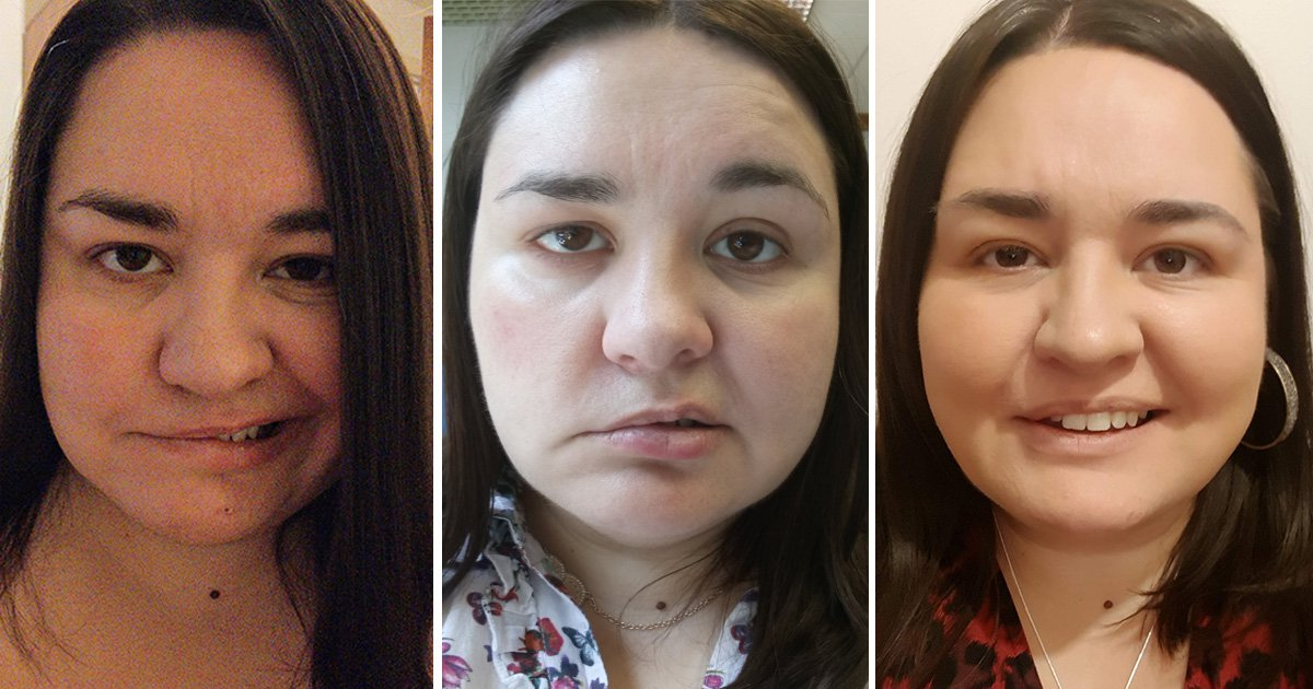 Woman who thought she was just tired woke up with a paralysed face due to Bell's Palsy