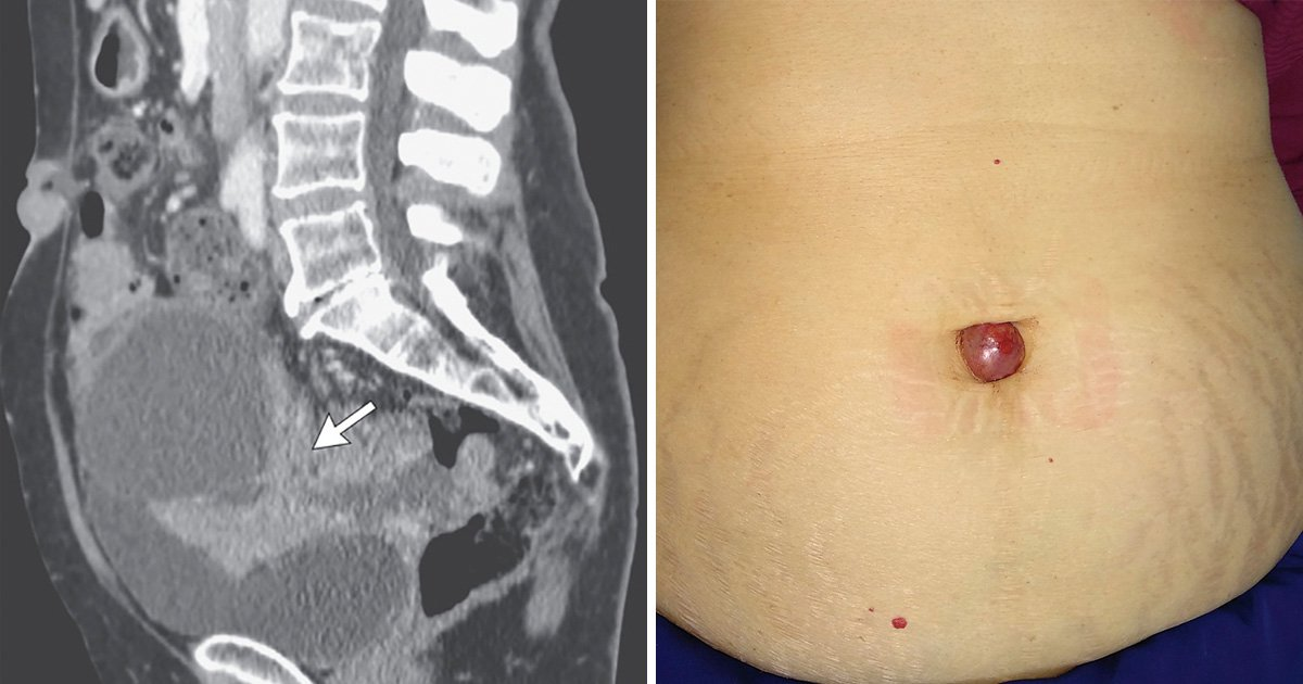 Painful growth in woman's belly button was a sign of ovarian cancer