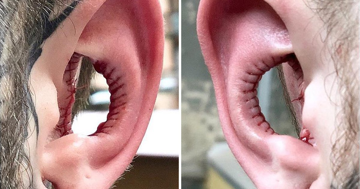 Is cutting a massive chunk out of your ears the next big body modification trend?