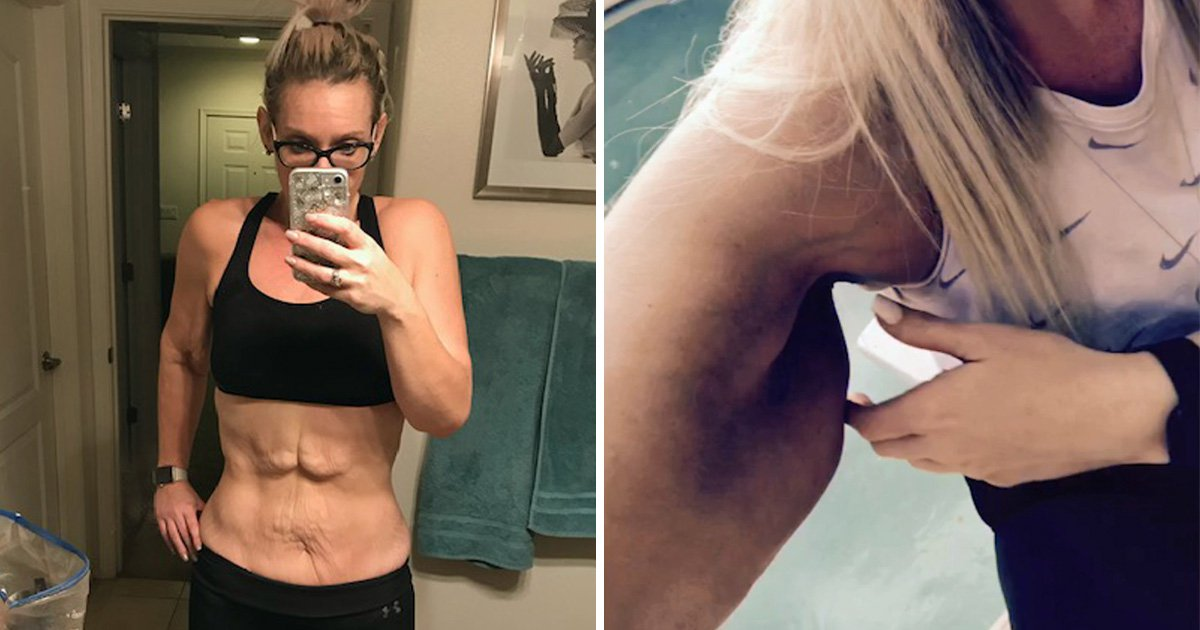 Woman starts fundraiser to get rid of excess skin after she develops body dysmorphia