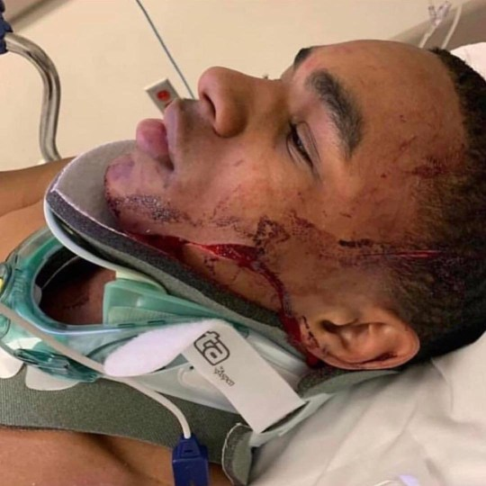 Black Chyna???s ex, rapper YBN Almighty Jay beaten and robbed in NYC on Instagram Live Provider: Instagram/power92chicago Source: https://www.instagram.com/p/BuzgikYFkL8/