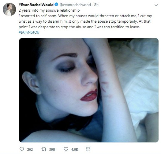 Scars Speak: Evan Rachel Wood Shares Images Of Self-harm Scars As She