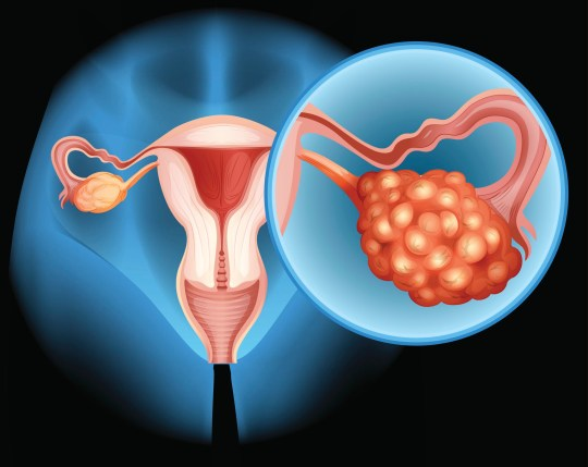 Ovarian cancer diagram in detail illustration