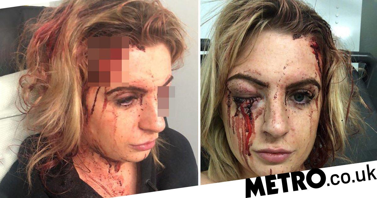 Woman's face smashed by carjackers armed with hammers as she left gym