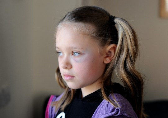 Pictured: Tia Gash 9 with her black eye. A nine-year-old girl has been left with a black eye after she was struck in the face by a thug while she was cycling home from school. Tia Gash cried when a random man struck her in the face, knocking her earring out in the process. The youngster stopped on the path when a man approached her from behind and hit her across the face before walking away. The Fernhurst Junior School pupil, from Portsmouth, Hants, then rushed home to tell her mother, Helen, what happened. SEE OUR COPY FOR DETAILS. ? Portsmouth News/Solent News & Photo Agency UK +44 (0) 2380 458800