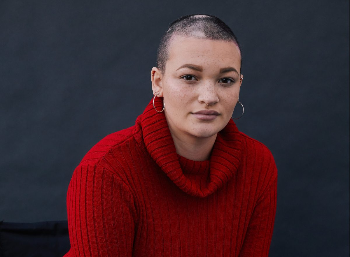 Model who suffered months of 'horrific' hair loss and seizures is inspiring people to embrace their differences