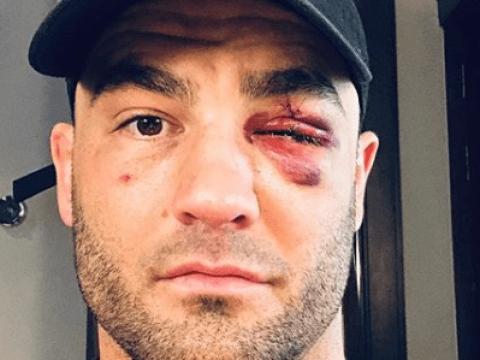 Eddie Alvarez felt like his eye exploded in ONE Championship defeat