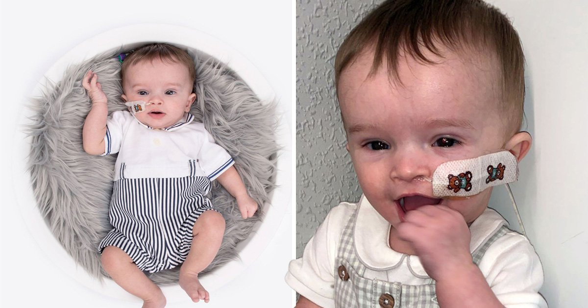 Baby born with a rare disorder becomes a model