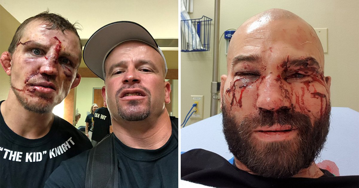 Artem Lobov and Jason Knight show off gruesome Bare Knuckle FC injuries