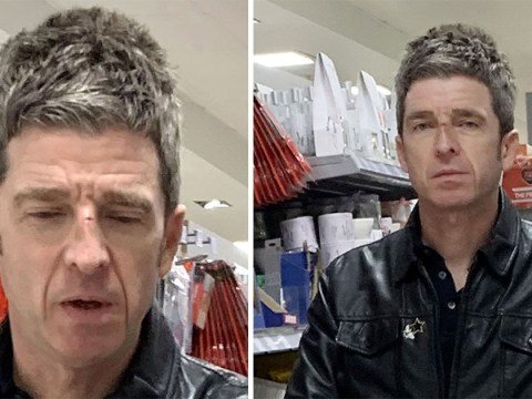 Noel Gallagher spotted with nasty cut on his nose in local supermarket days after Lily James' star studded party