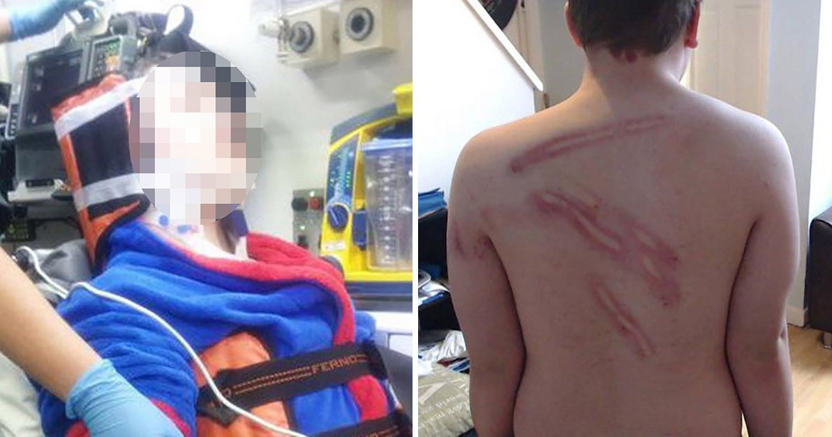 Vigilantes beat autistic boy, 14, to 'teach that little s**t a lesson'