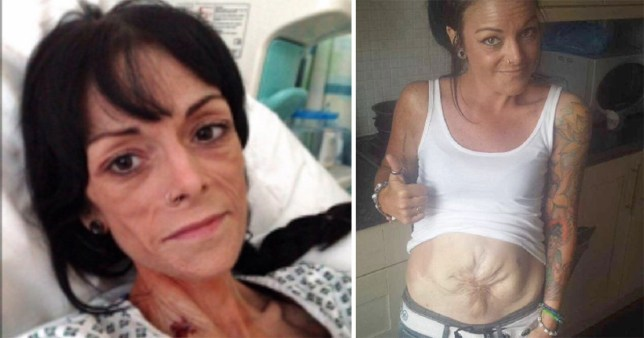 Michelle Oddy hopes the surgery will give her a life back (Picture: Ferrari Press Agency)