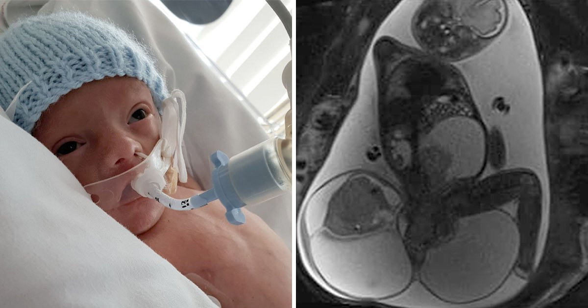 Baby born with tumour the same size as his body