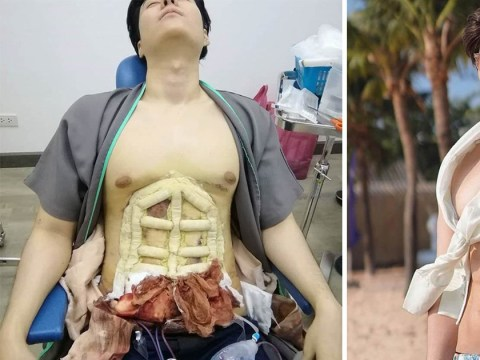 Thai man has liposuction to sculpt a six pack