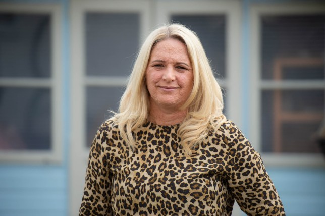 Mum Rachael Reynolds, 43, has a rare skin condition known as NF1 which causes lesions all over her body, but now says she feels confident enough to wear a bikini in public on holiday, pictured at home near Huddersfield, West Yorks. See SWNS story SWLEskin: A mother-of-four who suffers from a rare skin condition that covers her body in bubble-like lesions is finally embracing her appearance -- and now even has the confidence to wear a BIKINI in public. Rachael Reynolds, 43, endured years of cruel taunts and rude insults which made her so self-conscious that she often kept her body from view. The genetic disorder, known as neurofibromatosis type 1 (NF1), covers her face, neck, arms, back, stomach and legs.
