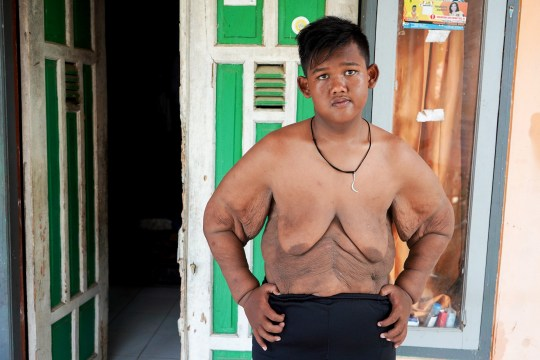 Obese man too embarrassed to leave his house sheds NINE