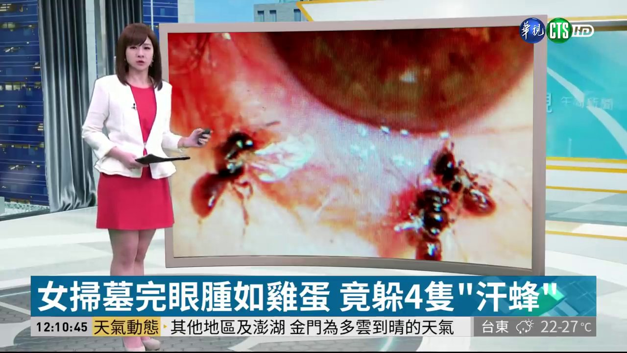METROGRAB: Bees feed on woman's tears. Doctors treating a Taiwanese woman for a swollen eye were shocked to find four tiny bees living under her left eyelid.