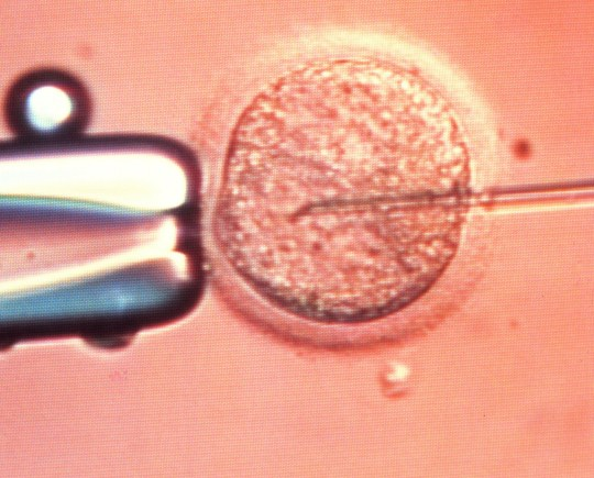 ICSI technique of \\in vitro fertilisation\\. Video light microscope view of the process of in vitro fertilisation (IVF), in which a human egg (ovum) is being injected with sperm. This is the ICSI technique (intra-cytoplasmic sperm injection). At right, a micro-needle has penetrated the circular egg cytoplasm to inject immobile sperm. At left is a pipette used to hold the egg steady while the needle is inserted. The ICSI technique ensures penetration of the egg, without wasting millions of sperm. Some eggs, however, do not survive ICSI due to needle damage. Nonetheless the technique achieves high fertilisation rates. Photographed at the NURTURE reproductive unit in Nottingham, UK. Magnification: x4200 when printed at 10 centimetres wide.