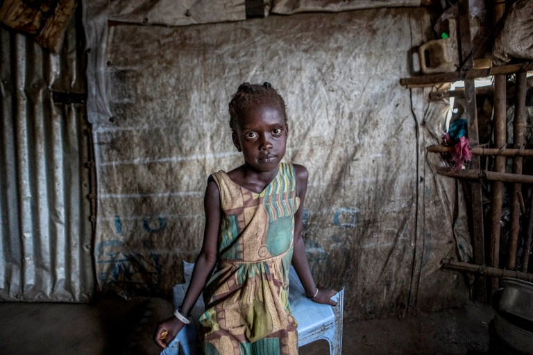ONE USE ONLY NO ARCHIVE EDITORIAL USE ONLY Nyaduol, aged 5, lives with her mother Nyaneng at a camp for people who have been internally displaced due to the conflict in South Sudan, and her image features in a photography exhibition from international children???s charity World Vision that goes on display from Friday 12th until Sunday 14th April at The Old Truman Brewery in Brick Lane, London. PRESS ASSOCIATION Photo. Issue date: Tuesday 9 April, 2019. South Sudan in East Africa is the world???s youngest country, gaining independence in 2011. However, it has been convulsed by a five-year long civil war, which has killed at least 400,000 people. Over 19,000 children have been conscripted into various armed groups, and over 4 million have been displaced. Photo credit should read: Rick Findler/World Vision UK/PA Wire