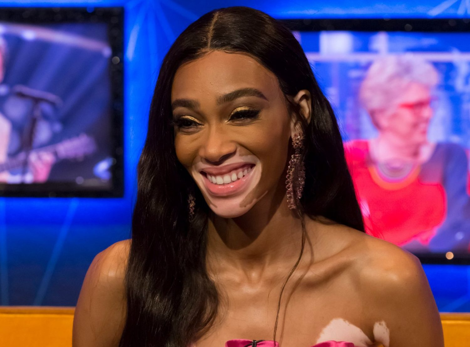 Winnie Harlow wants you to know she's not 'suffering' from vitiligo