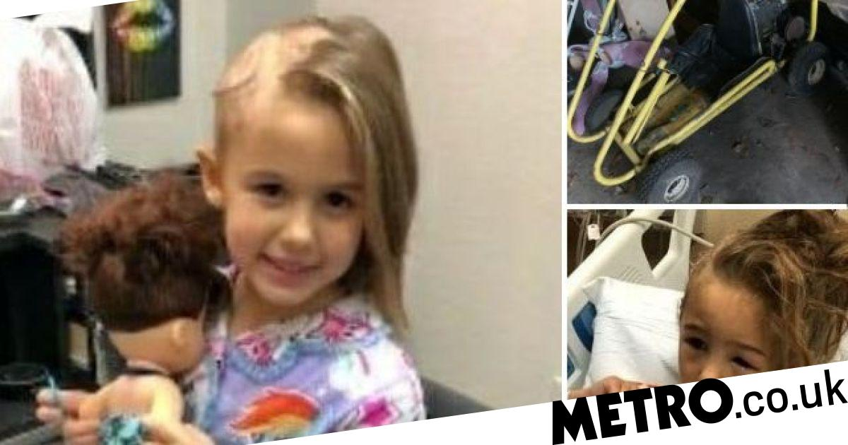 Girl, 5, is scalped after getting her hair caught in go kart