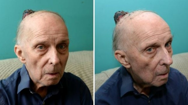 Pensioner told to take paracetamol for bump on his head that was actually skin cancer