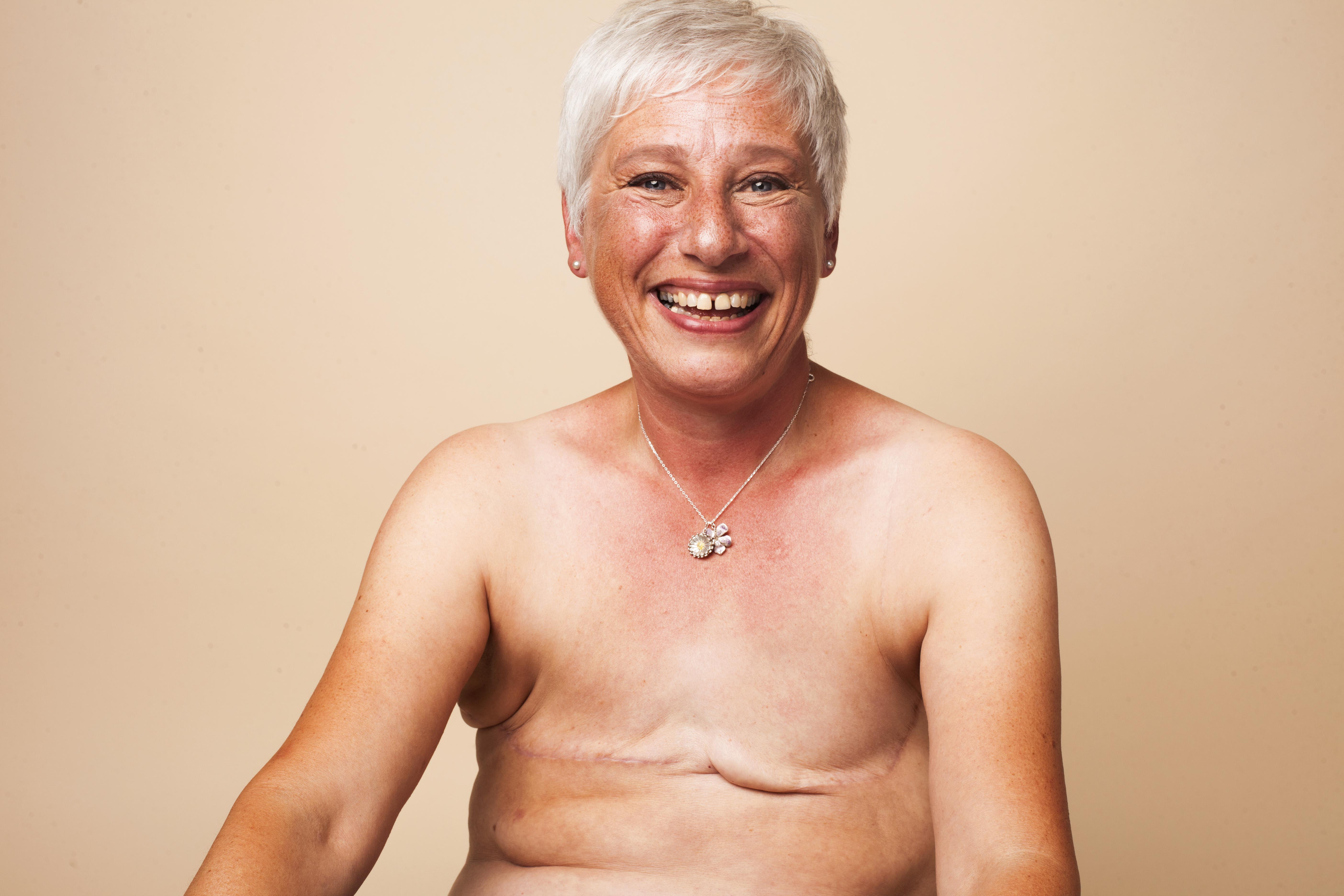 Strong Women: 'Surgeons didn't want to remove my healthy breast, but I know my own mind'