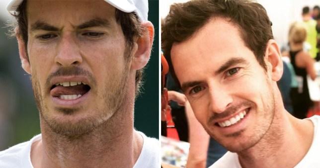 Andy Murray's teeth!