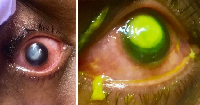 What happens when you sleep with contact lenses in