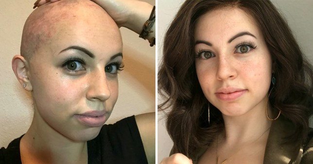 Dorin shaved her head due to the hair pulling disorder