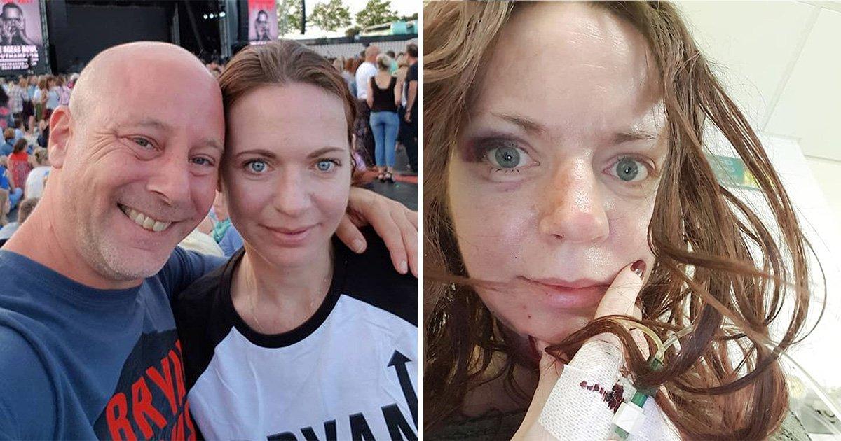 Sarah showed off her injuries