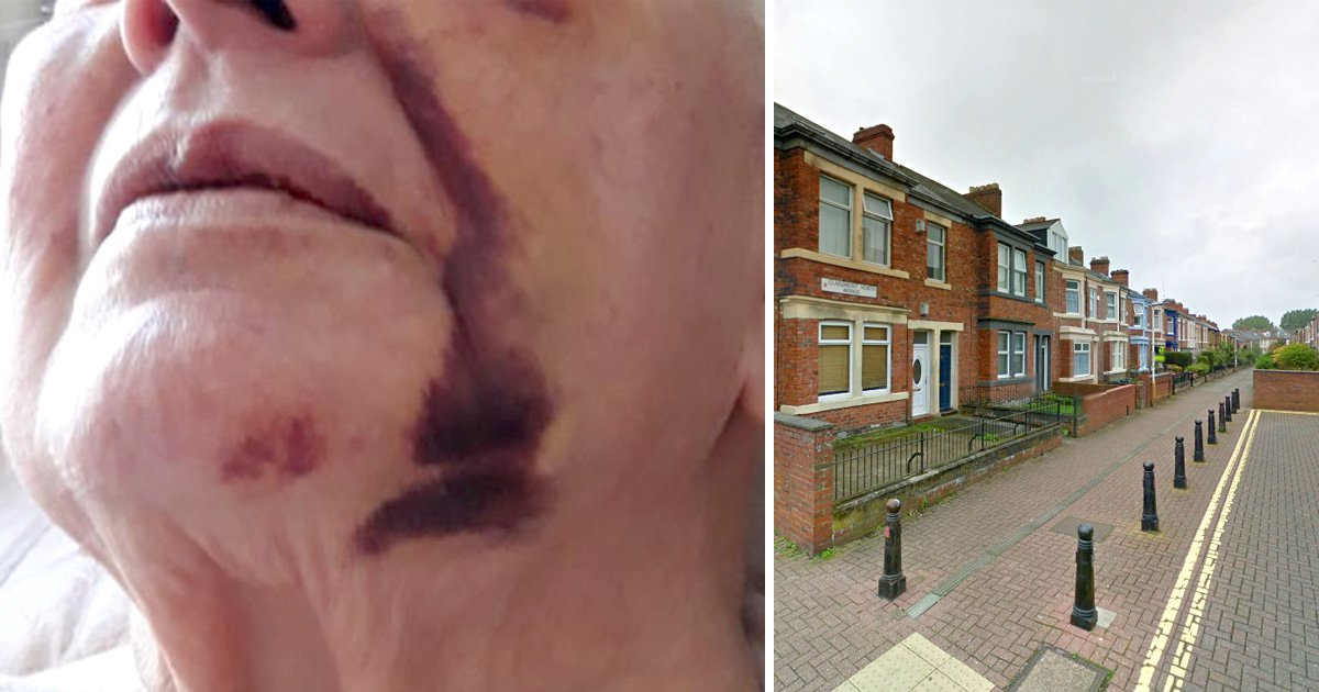 A 79-year-old woman was left with a fractured eye socket after a robbery in Gateshead