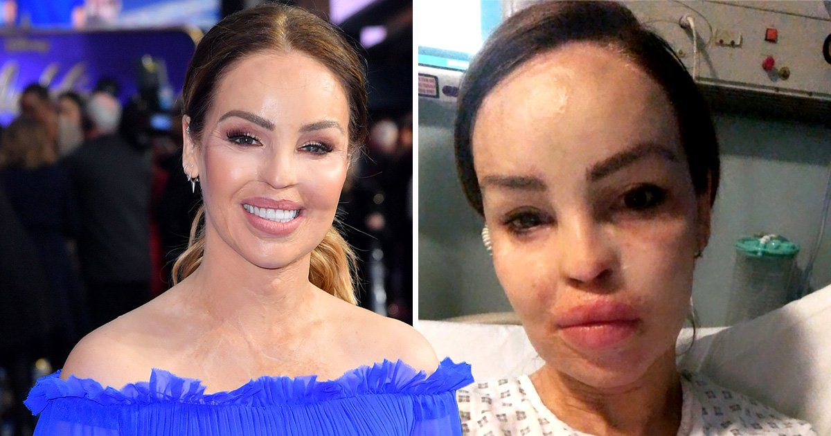 Katie Piper back in hospital with infection after 'ignoring her symptoms'