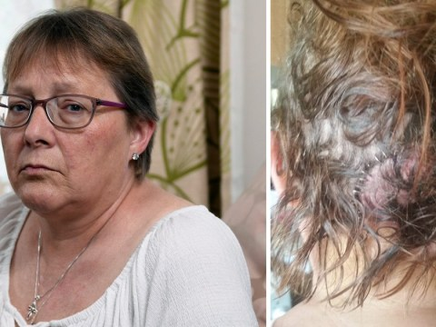 Gran left with flesh hanging off her skull after son-in-law cut her with meat cleaver