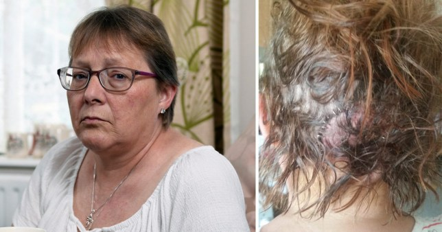 Nicki Murnane had to have 47 staples in her head after Luke Mackrory attacked her