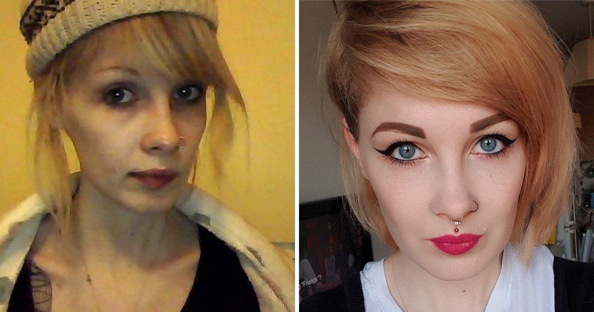 Woman, 26, says eating disorder was dismissed once she was considered an adult