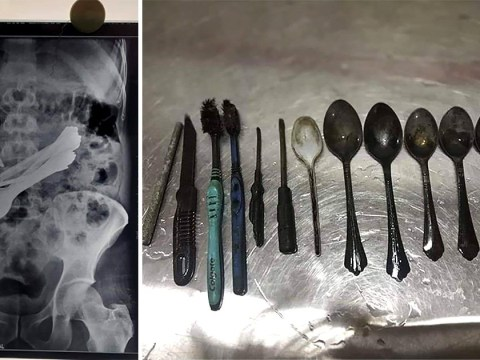 Medics remove eight spoons and a knife from patient's intestine