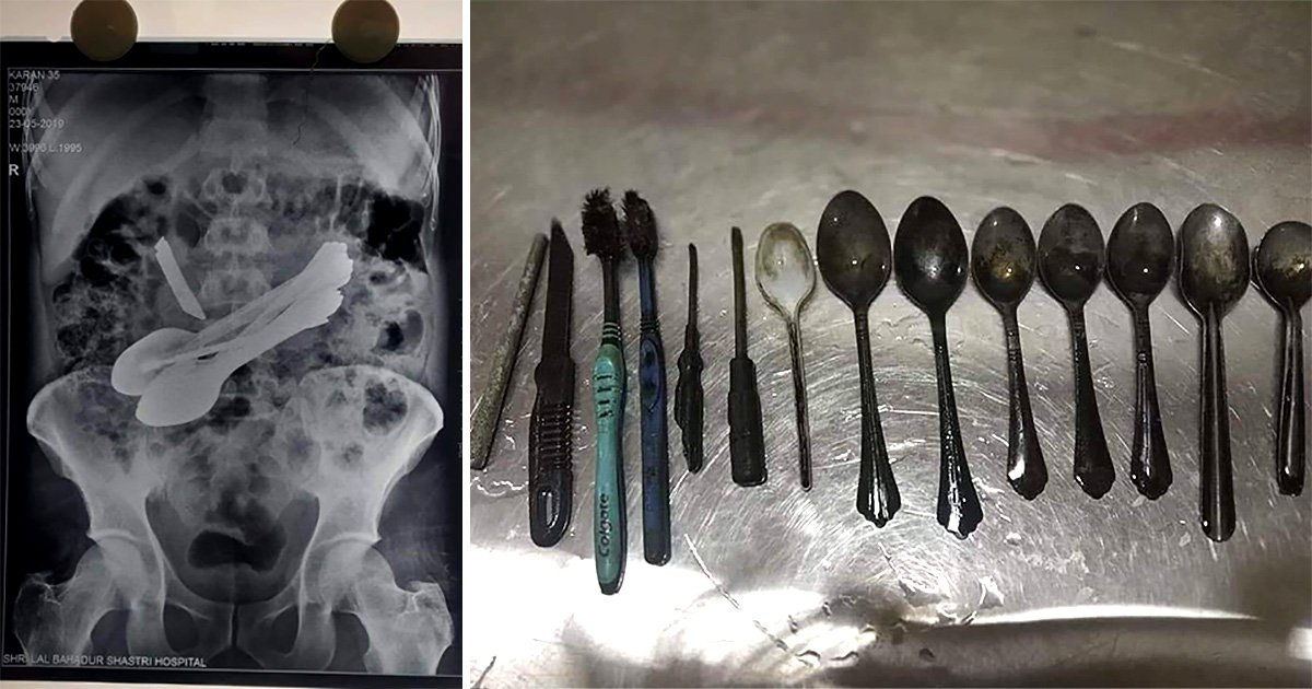 An array of spoons, toothbrushes, screwdrivers, a blade and a rod were found inside a man's stomach in India