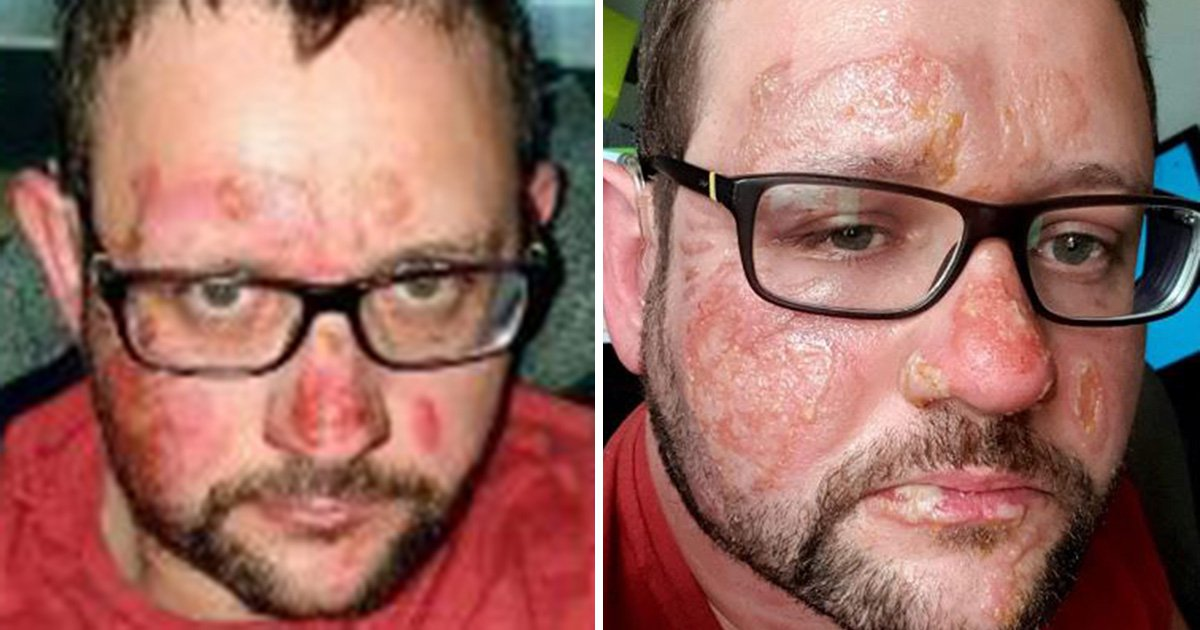 Magician left with burns after aromatherapy kit set his face on fire