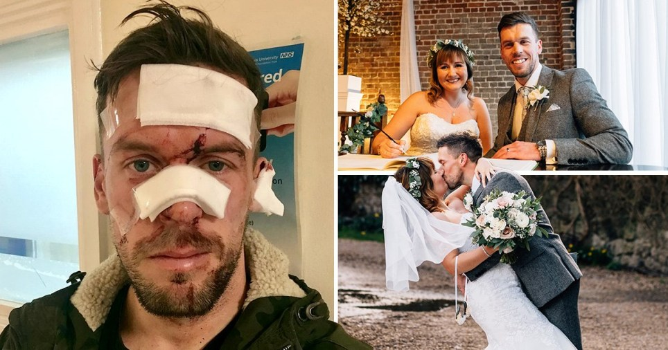 Groom glassed in face night before wedding