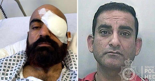 Ali Begzada, 43, is now almost completely blind and suffers with migraines following the attack (Picture: Media Wales)
