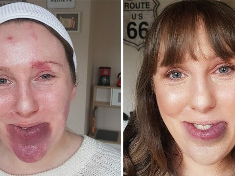 Strangers asked woman if she'd 'been in a fight' over her birthmark