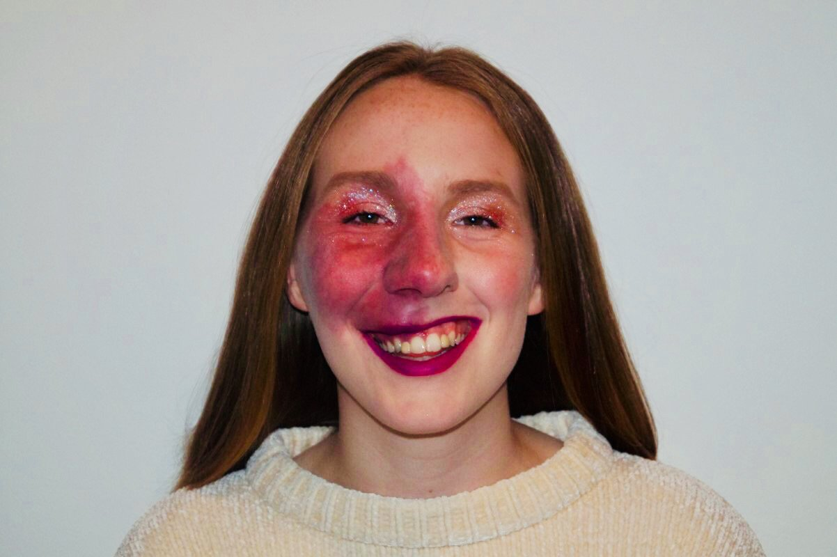 Eleanor Hardie has a port wine stain birthmark on her face