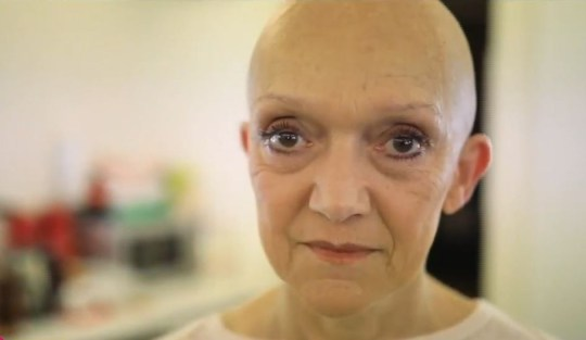 Gillian Wright who plays Jean Slater on Eastenders, poses in her bald cap